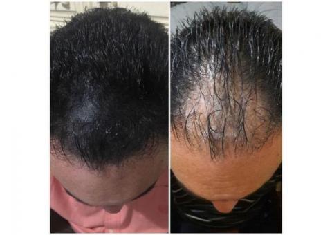 Simulacion de foliculos o cabello con Micropigmentacion